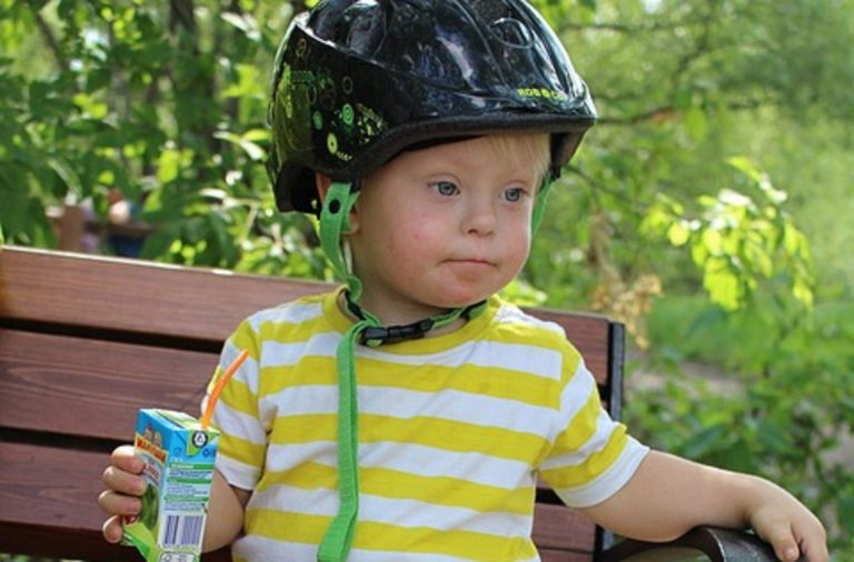 UMIERAJĄ ZANIM ZDĄŻĄ SIĘ NARODZIĆ! Tam dzieci z zespołem Downa nie mają szans!