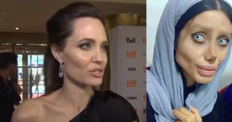Chciała wyglądać jak Angelina Jolie – młoda Iranka zrobiła z siebie prawdziwe straszydło! [FOTO]