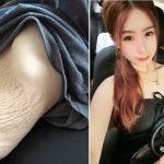 Brzuch 23-letniej Azjatki wygląda jak brzuch staruszki! Choć to nie jej wina, internauci byli BEZLITOŚNI [FOTO]