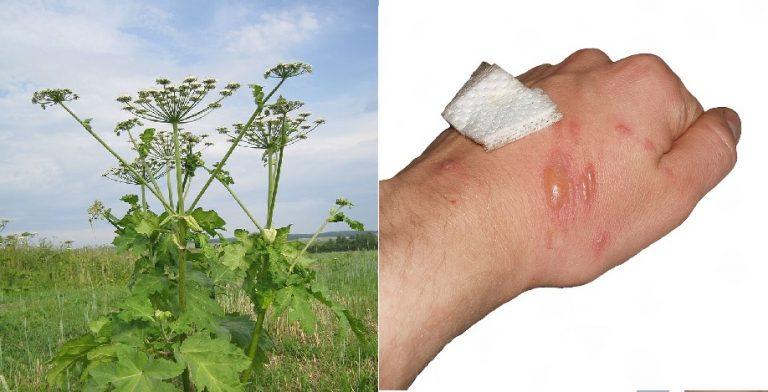 """Pokrzywa to pikuś: ta roślina MASAKRUJE skórę: """"Gdy pojawiły się bąble KRZYCZAŁ Z BÓLU"""" – uważaj!"""