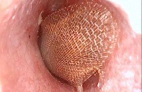 bolące ucho z karaluchem w środku
