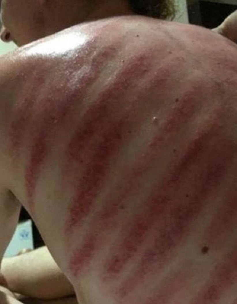 masaż na wakacjach