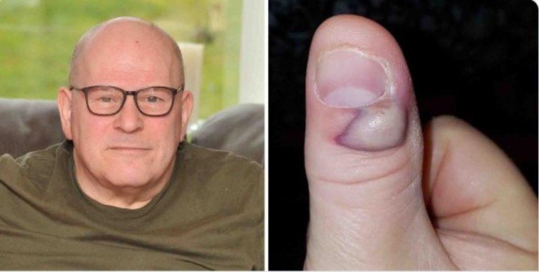 Od obgryzania paznokci prawie umarł! Paskudny nawyk poskutkował miesiącami cierpień w szpitalu