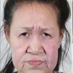 Przez rzadką chorobę wyglądała jak własna babcia! Lekarze zmienili jej twarz nie do poznania!