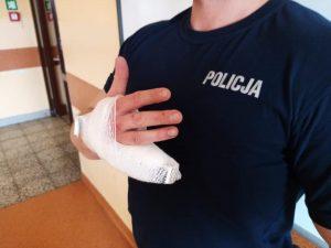 policjant z odgryzionym palcem
