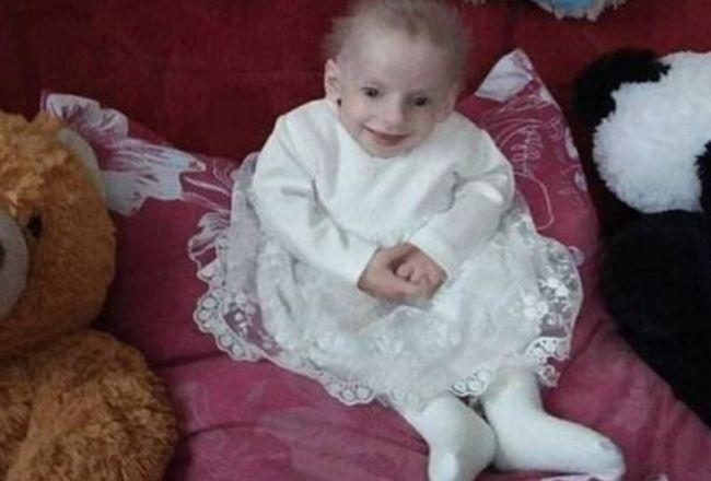 8-letnie dziecko zmarło ze STAROŚCI! Miało TEN rzadki przypadek choroby (FOTO)