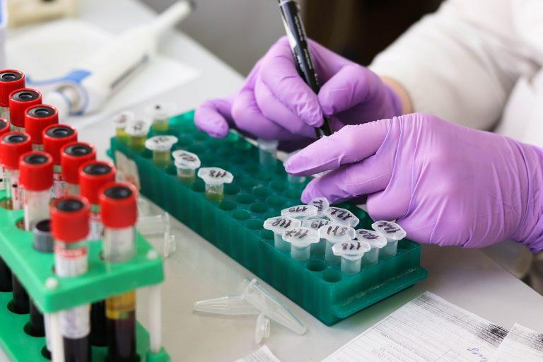 Wiemy, kiedy powstanie SZCZEPIONKA na koronawirusa! Naukowcy zdradzili informację
