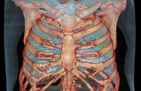ludzkimi płucami
