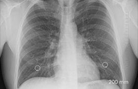 płuca osoby