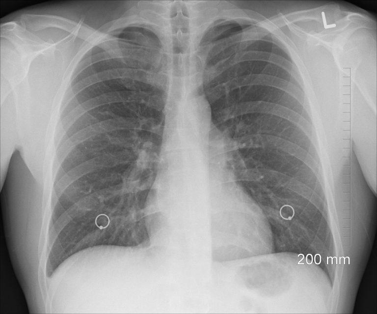 Tak brzmią płuca osoby zakażonej koronawirusem! Nagranie przeraża!